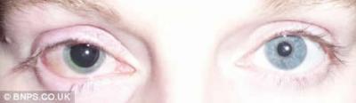 Mujer confunde pegamento con sus gotas para los ojos